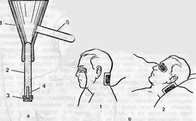 Как проводится электрофорез