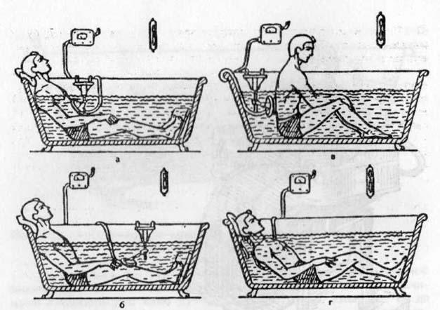сидячие ванны гинекология